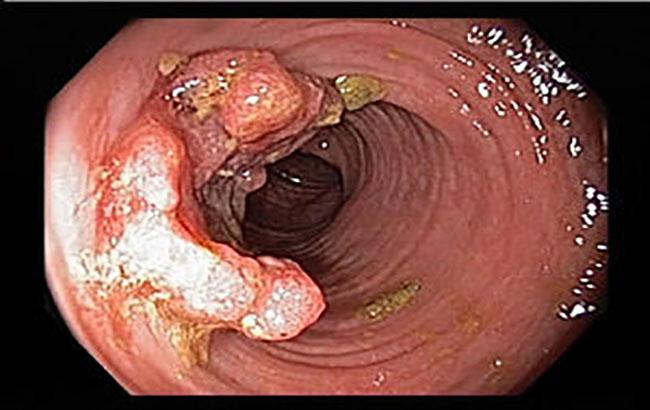 جهشهای ژنتیکی در سرطان کولورکتال
