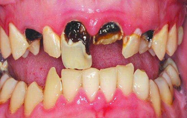 روش درمان درد پوسیدگی دندان