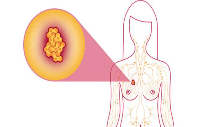 ارزیابی راهبردهای گوناگون سرطان پستان