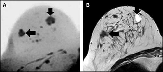 کاهش ضرورت بیوپسی پستان با استفاده از MRI