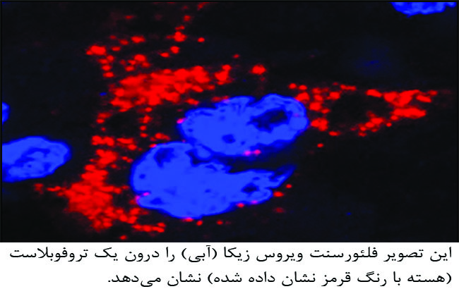آلودگی جنین به ویروس زیکا