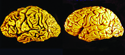 اثر افزایش فعالیت مغز سالمندان