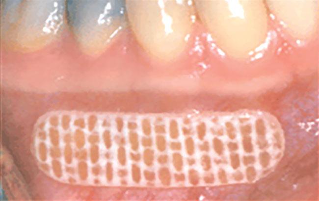 بیحسی مخاطی در دندانپزشکی