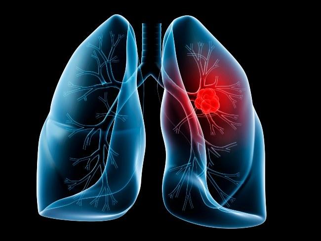 ژن، سیگار و سرطان ریه (۲) (بخش پایانی)