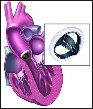 مقایسه قلب مکانیکی و دریچههای بیولوژیکی