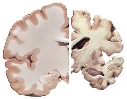 نقشژنها در بیماری آلزایمر