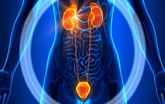 کمبود ویتامینD  و احتمال افزایش خطر ابتلا به سرطان مثانه