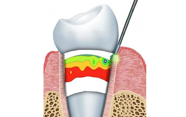 مزایای درمان توسط لیزر در مشکلات دندان
