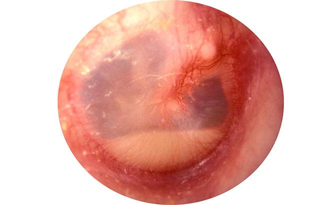 نارسایی درمان کوتاهمدت در عفونت گوشمیانی
