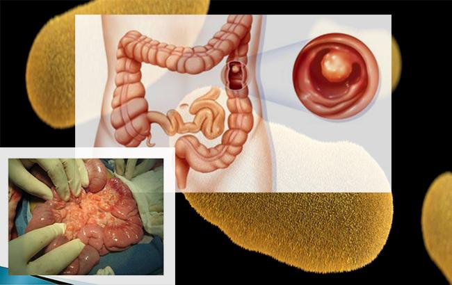علل، نشانهها و درمان آدنیتمزانتر