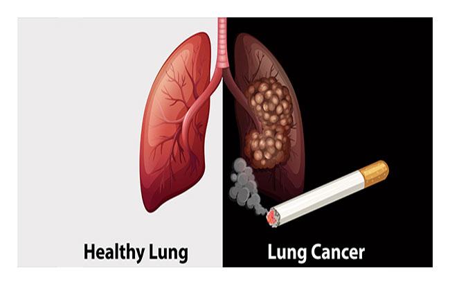 مکملهای ویتامینی متداول و خطر ابتلا به سرطان ریه