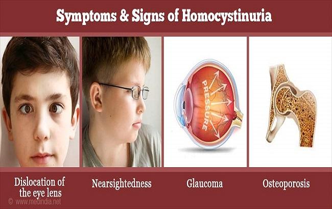 هوموسیستینوری؛ علل، نشانهها و آزمایشها