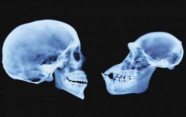 مشکلات مشابه دندانی انسانهای ماقبلتاریخ و نسلما