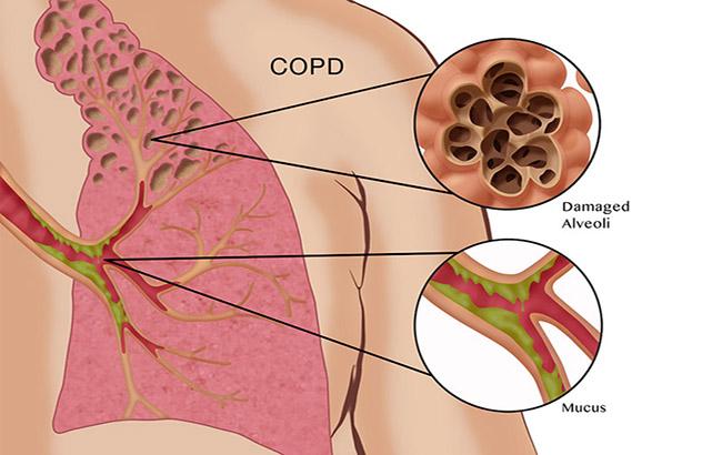 خطر CVD با گشادکنندههای برونش طولانی اثر پساز یک ماه