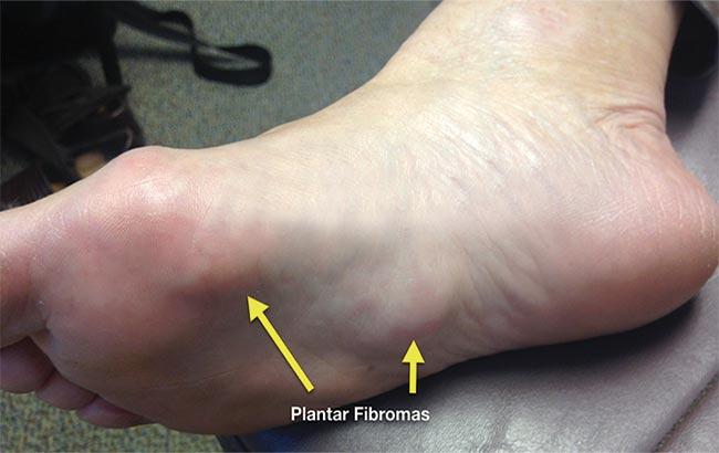 درمان فیبروم کف پایی