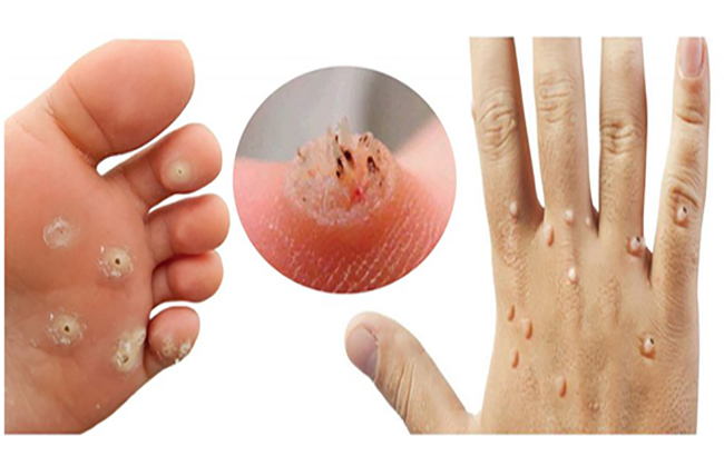 پرسش و پاسخ پیرامون عفونتهای پاپیلومای انسانی (HPV)
