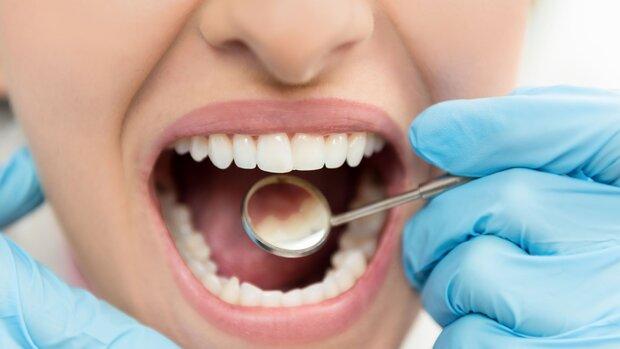 عمر مفید ایمپلنت های دندانی ۱۰ سال است