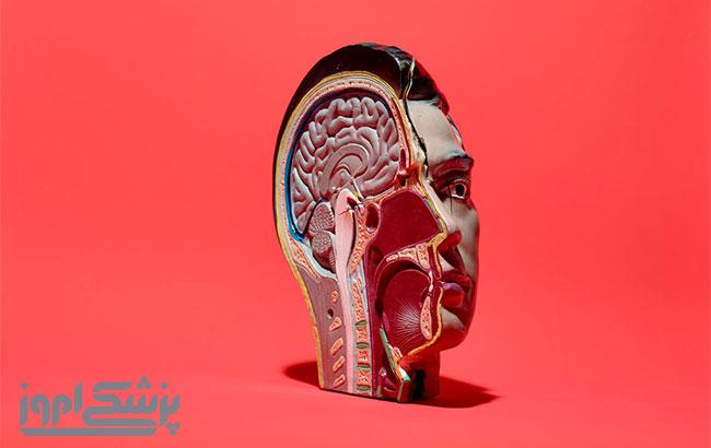 تشخیص و درمان زوال عقل