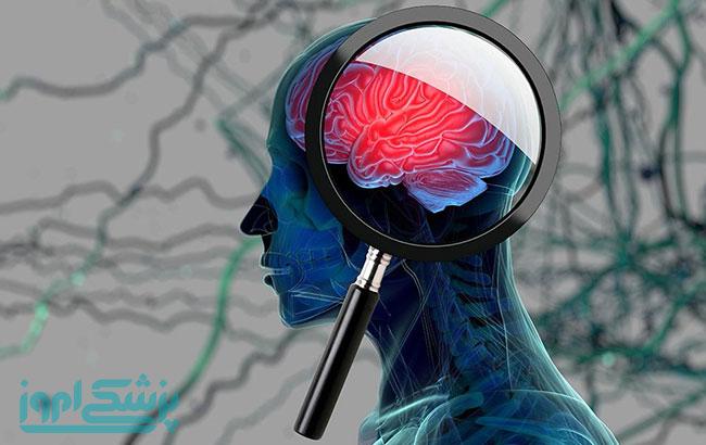 عوارض ، نشانه ها و علل زوال عقل چیست؟