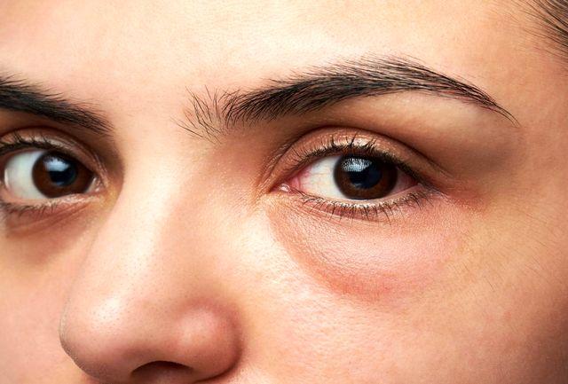 یک راه ساده برای تسکین هرگونه پف زیر چشم