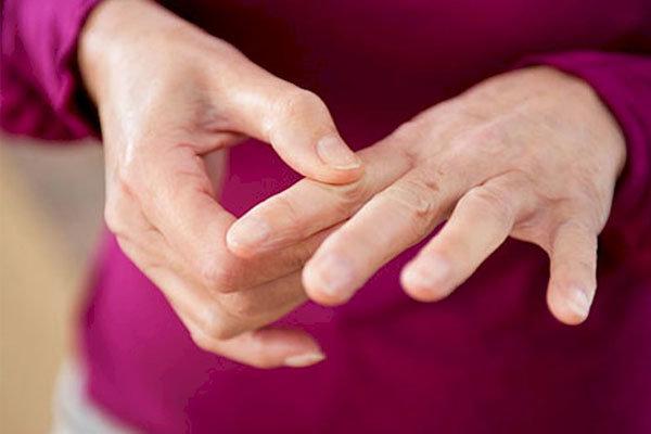 سندروم داون در کودکان منجر به آرتروز می شود