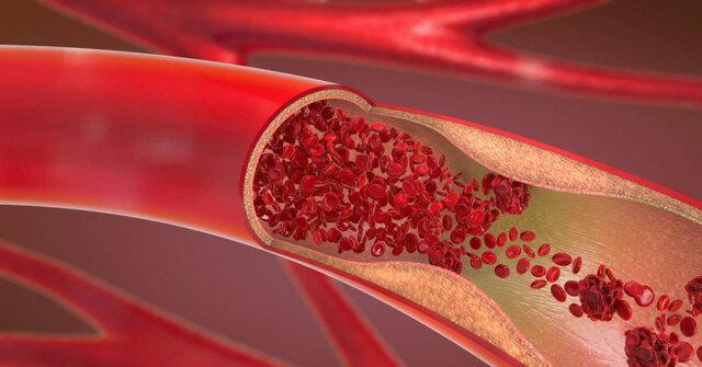 اکثر جراحیها برای باز کردن شریانهای قلب غیرضروری هستند