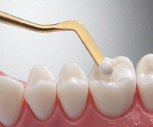 تولید نانوکامپوزیتهای دندان نژاد ایرانی در کشور/جلوگیری از خروج ۸ میلیون دلاری ارز