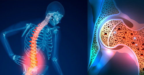 پوکی استخوان در زنان بیشتر از مردان/ توصیه وزارت بهداشت برای کنترل بیماری خاموش