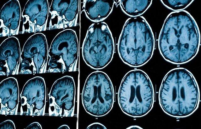 شبکه ملی هوش مصنوعی در تصویربرداری پزشکی راهاندازی میشود