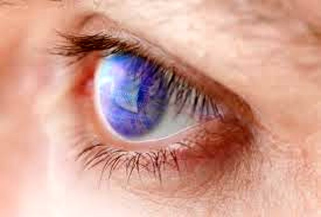 بلفاروپلاستی؛ عمل زیبایی پلک بالا و پایین چشم