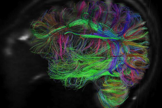 کشف مدارهای مغزی مرتبط با اختلال اضطراب