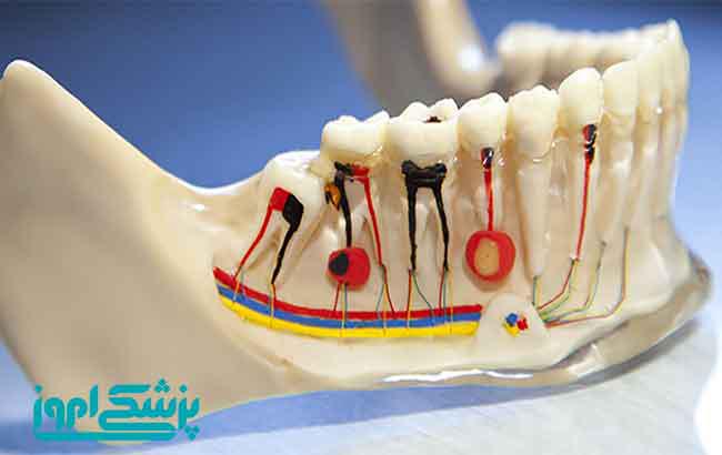 آسیب عصبی بعد از تزریق دندانپزشکی