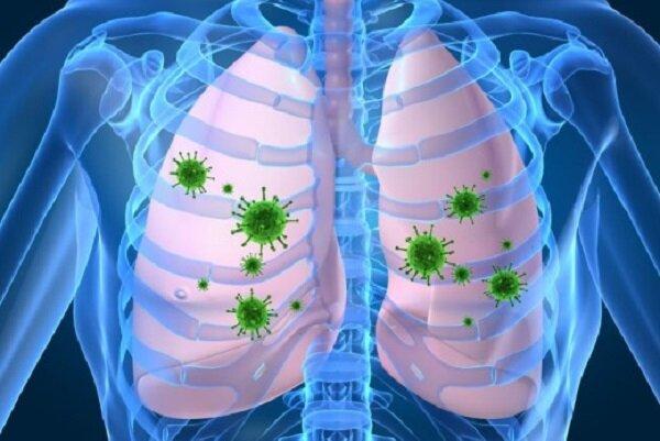 تاثیر تغییرات اقلیمی در افزایش شیوع عفونت های تنفسی