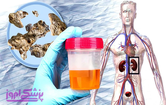 علائم، علل ، عوارض و درمان سنگ کلیه