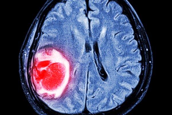 ضرورت حمایت از تحقیقات ملی درباره داروی یک سرطان بدخیم مغزی