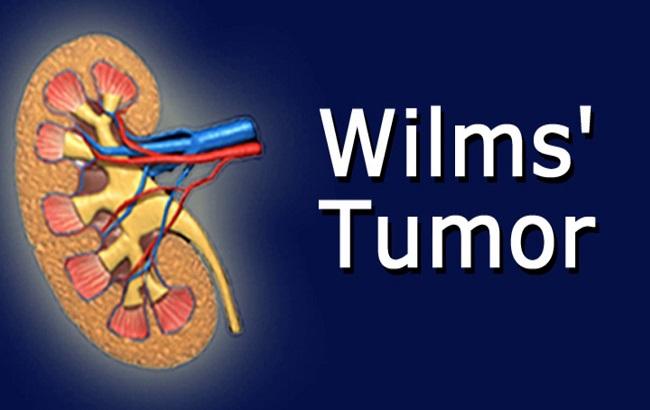درمان بازگشت تومور ویلمز در کودکان