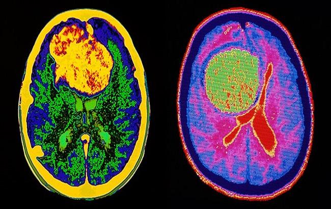 ابداع روش نوین درمانی و افزایش طول عمر و کیفیت زندگی مبتلایان به تومور مغزی بدخیم