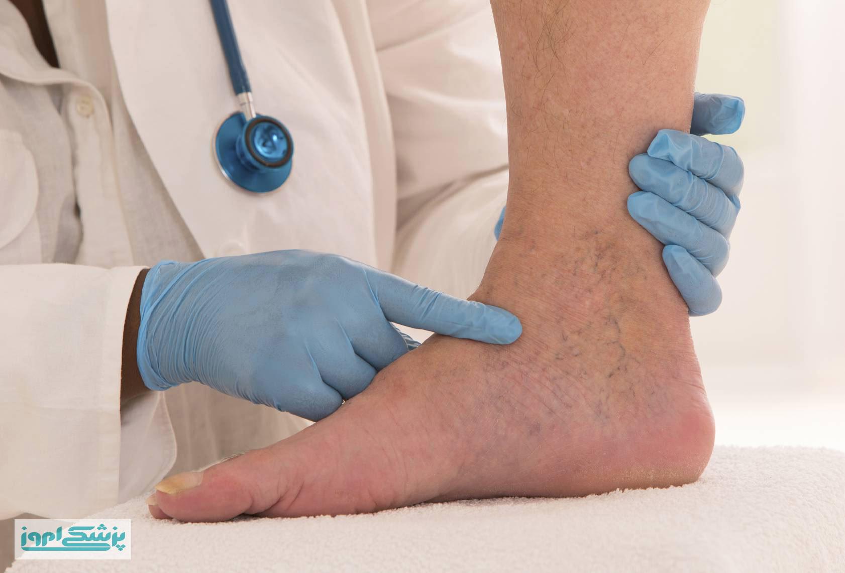 لخته شدن خون در پا ،هر آنچه که باید بدانید.