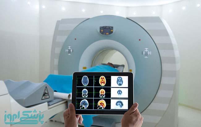 مقایسه CT اسکن و PET اسکن در ارزیابی سرطان متاستاتیک سروگردن