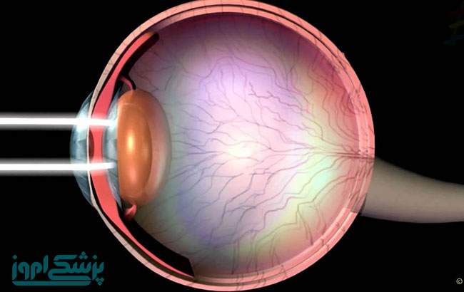 آنژیوگرافیOCT در تشخیص بیماریهای شبکیه