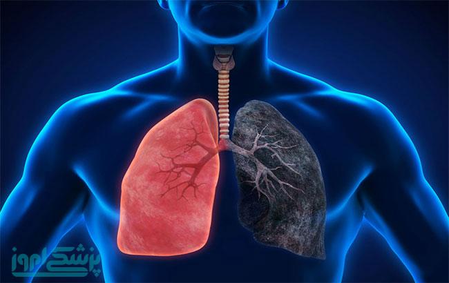 جهش مایع مغزینخاعی در سرطان ریه با متاستاز مغزی