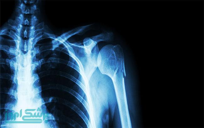 گزارش رادیولوژی مهم است؟