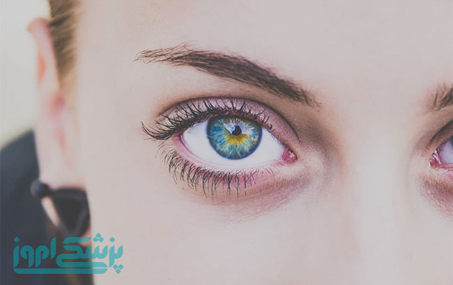 اختلالات چشمی در کودکان اوتیسم