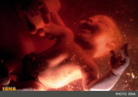 صدور بیش از 2900 مجوز سقط جنین درمانی در چهار ماهه امسال