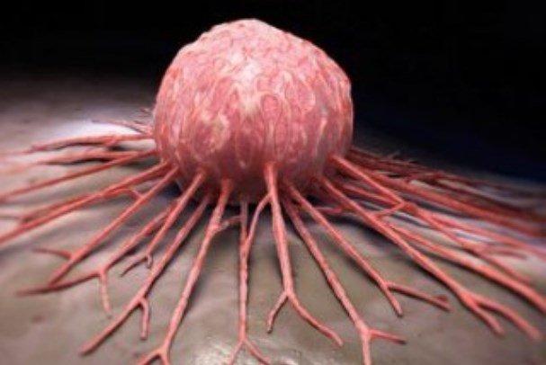 خونریزی داخلی بعد از حمله قلبی نشانه سرطان است