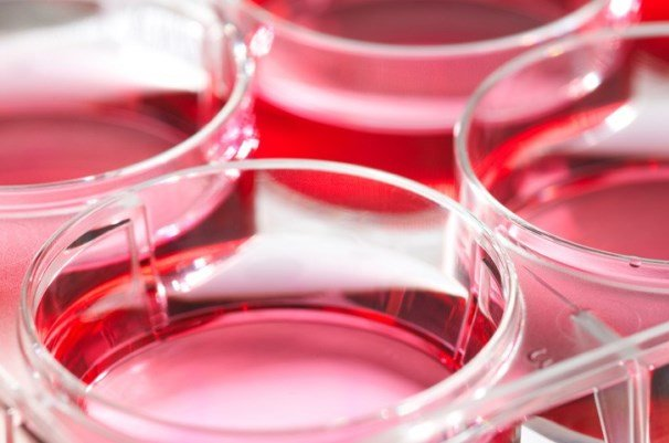 دلیل مرگ سلولهای بنیادی مزانشیمی پس از پیوند کشف شد