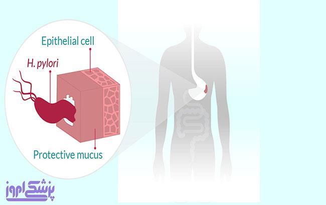علائم ، عوارض و درمان عفونت هلیکوباکتر پیلوری