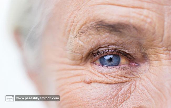 انواع چروک های پوستی ، پیشگیری و روش های درمان آن