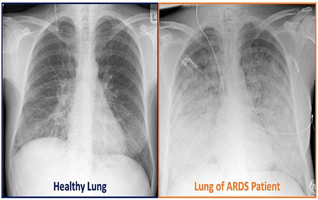 علائم ، عوارض و درمان سندرم دیسترس حاد تنفسی