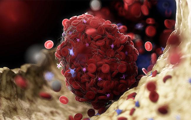 چگونه واکسن AstraZeneca باعث ایجاد لخته میشود؟